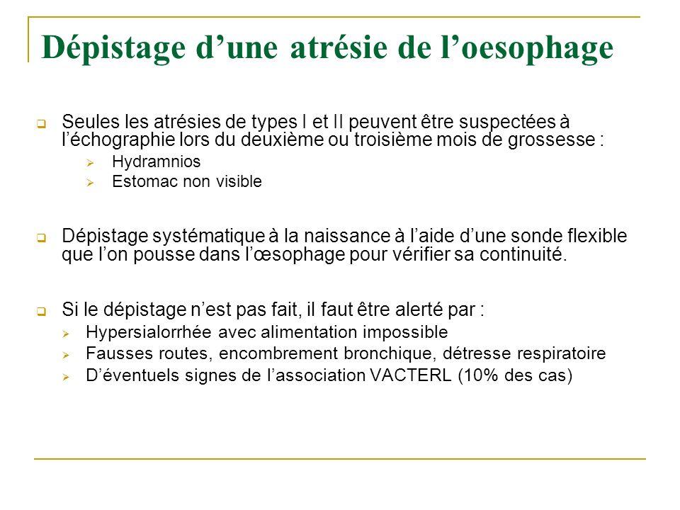 Dépistage dune atrésie de loesophage Seules les atrésies de types I et II peuvent être suspectées à léchographie lors du deuxième ou troisième mois de