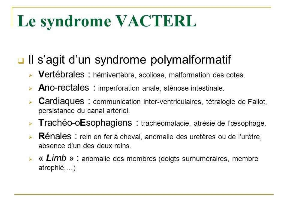 Le syndrome VACTERL Il sagit dun syndrome polymalformatif Vertébrales : hémivertèbre, scoliose, malformation des cotes. Ano-rectales : imperforation a