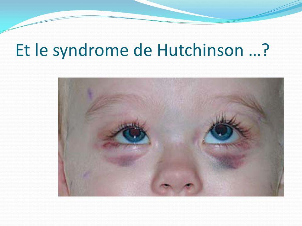 Et le syndrome de Hutchinson …?
