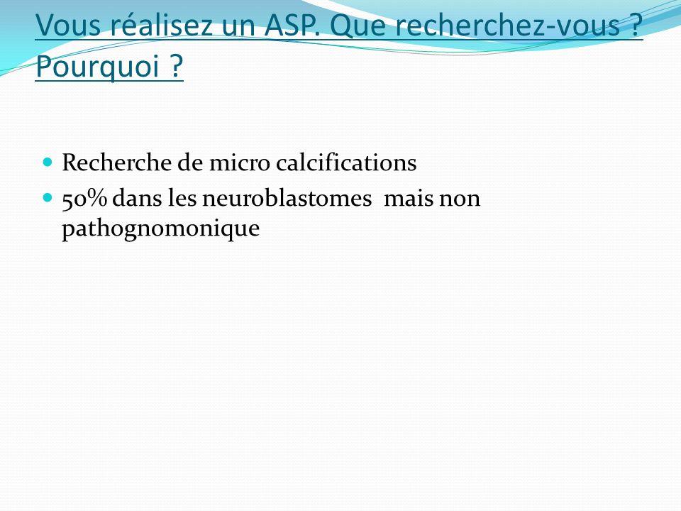 Vous réalisez un ASP. Que recherchez-vous ? Pourquoi ? Recherche de micro calcifications 50% dans les neuroblastomes mais non pathognomonique