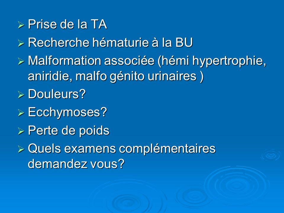 Prise de la TA Prise de la TA Recherche hématurie à la BU Recherche hématurie à la BU Malformation associée (hémi hypertrophie, aniridie, malfo génito