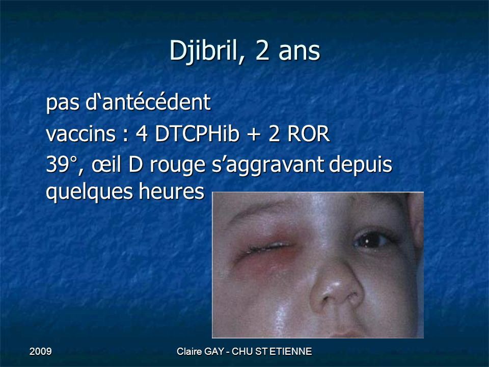 2009Claire GAY - CHU ST ETIENNE Djibril, 2 ans pas dantécédent vaccins : 4 DTCPHib + 2 ROR 39°, œil D rouge saggravant depuis quelques heures
