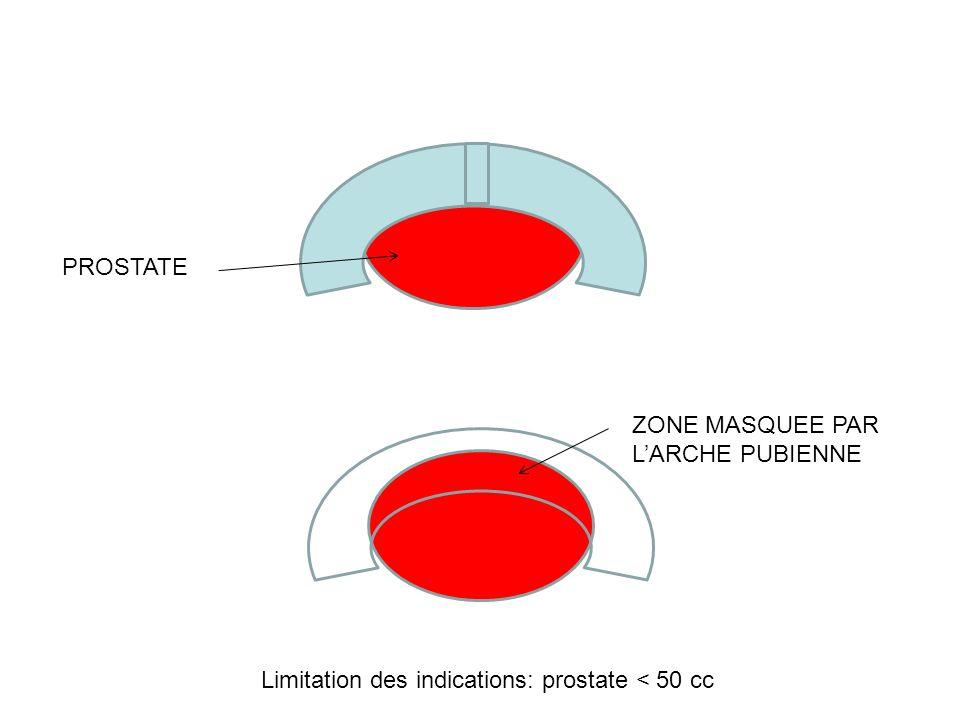 PROSTATE ZONE MASQUEE PAR LARCHE PUBIENNE Limitation des indications: prostate < 50 cc