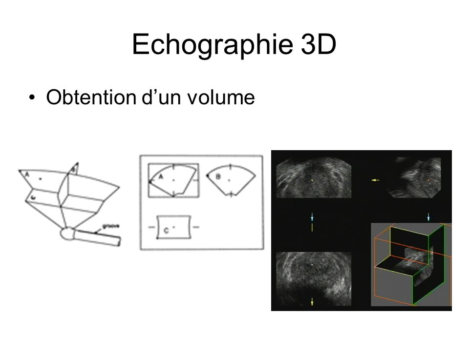 Echographie 3D Obtention dun volume