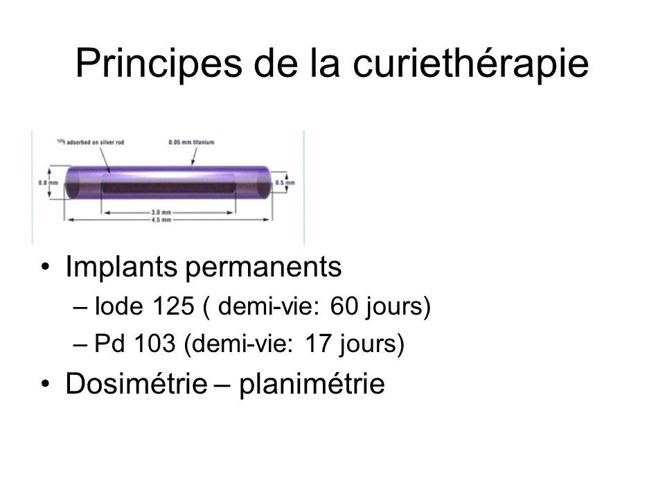 Principes de la curiethérapie Implants permanents –Iode 125 ( demi-vie: 60 jours) –Pd 103 (demi-vie: 17 jours) Dosimétrie – planimétrie