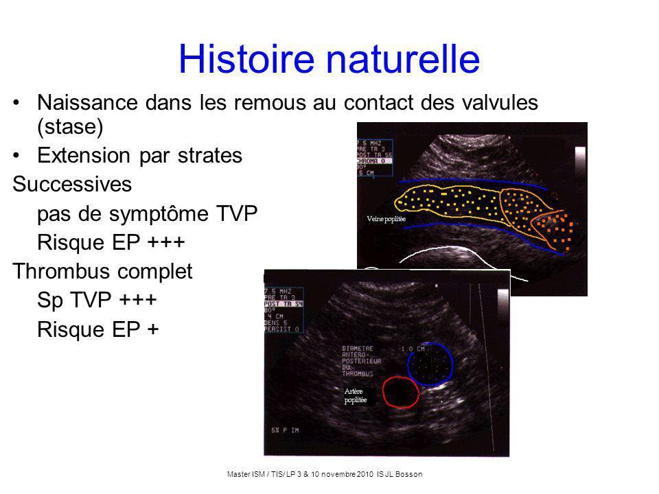 Histoire naturelle Naissance dans les remous au contact des valvules (stase) Extension par strates Successives pas de symptôme TVP Risque EP +++ Throm