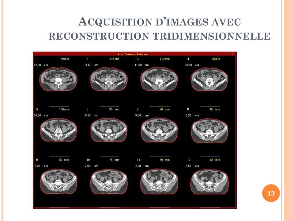 A CQUISITION D IMAGES AVEC RECONSTRUCTION TRIDIMENSIONNELLE 13