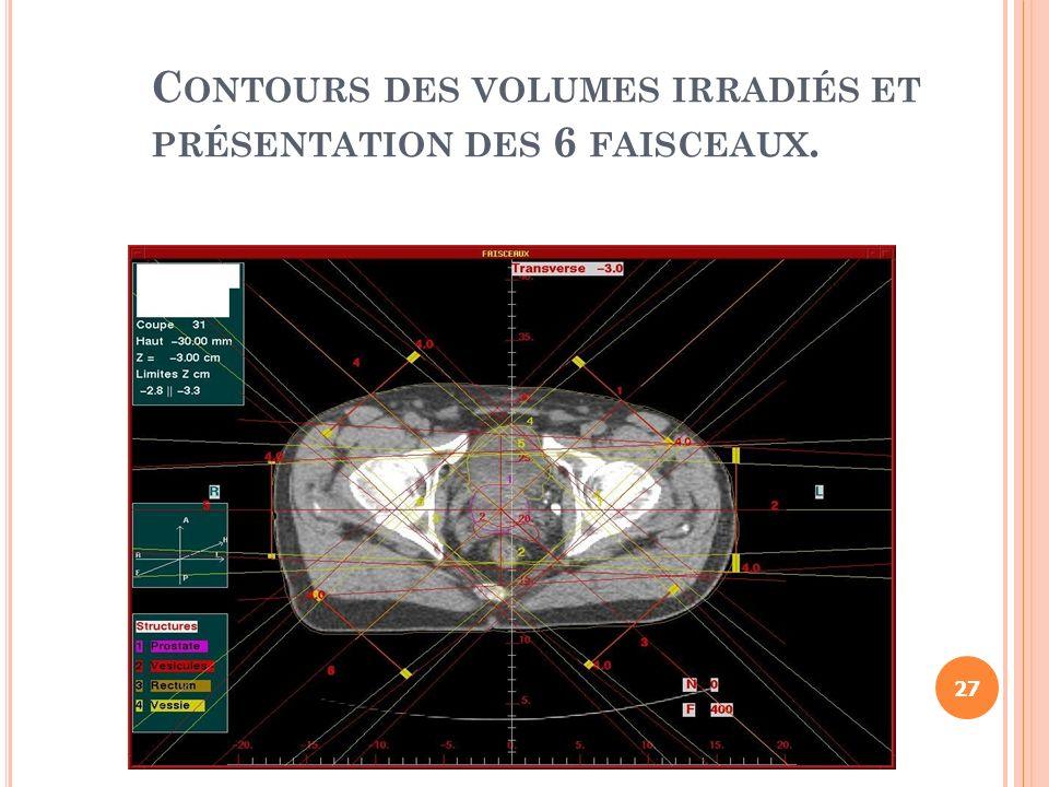 C ONTOURS DES VOLUMES IRRADIÉS ET PRÉSENTATION DES 6 FAISCEAUX. 27