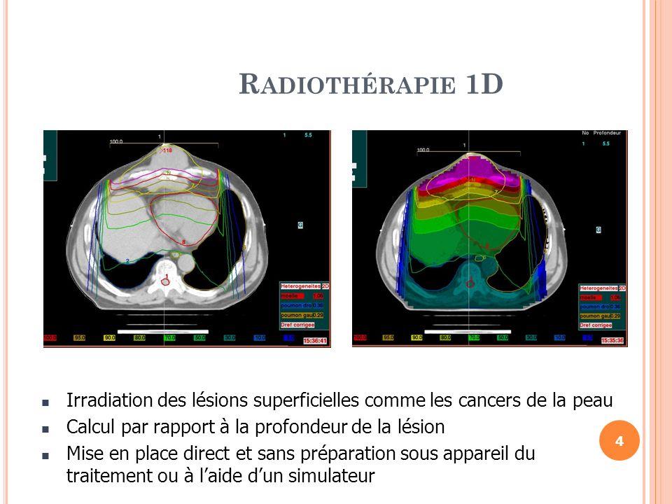 R ADIOTHÉRAPIE 2D Planification de la radiothérapie par rapport à la profondeur de la lésion dans 2 plans sagittal et coronal (traitement à mi-diamètre ou à une profondeur donnée) Installation géométrique à laide dun Simulateur et limagerie orthogonale par rapport aux repères anatomiques (les os) 5