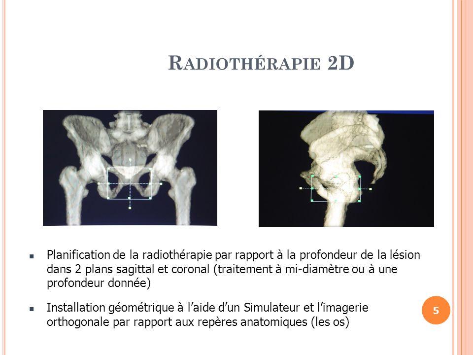 S PÉCIFICITÉ DE LA RCMI En radiothérapie classique cest lutilisateur qui DOIT S ADAPTER aux caractéristiques figées du faisceau.