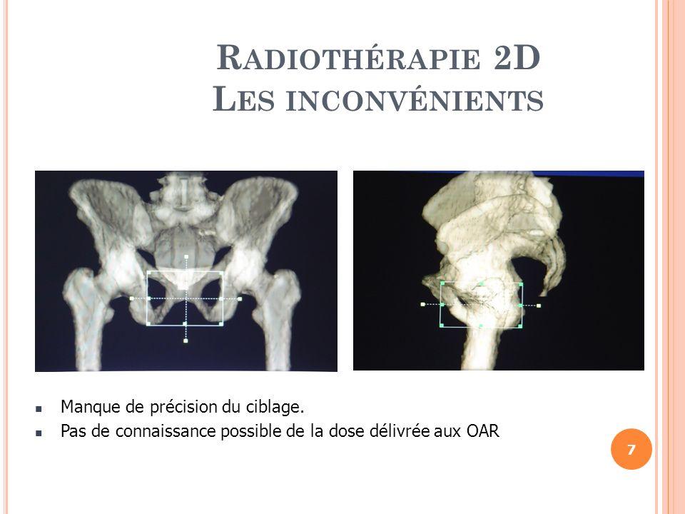 R ADIOTHÉRAPIE 2D L ES INCONVÉNIENTS Le volume dirradiation identique chez différents patients sans prendre en considération les caractéristiques anatomiques individuelles.
