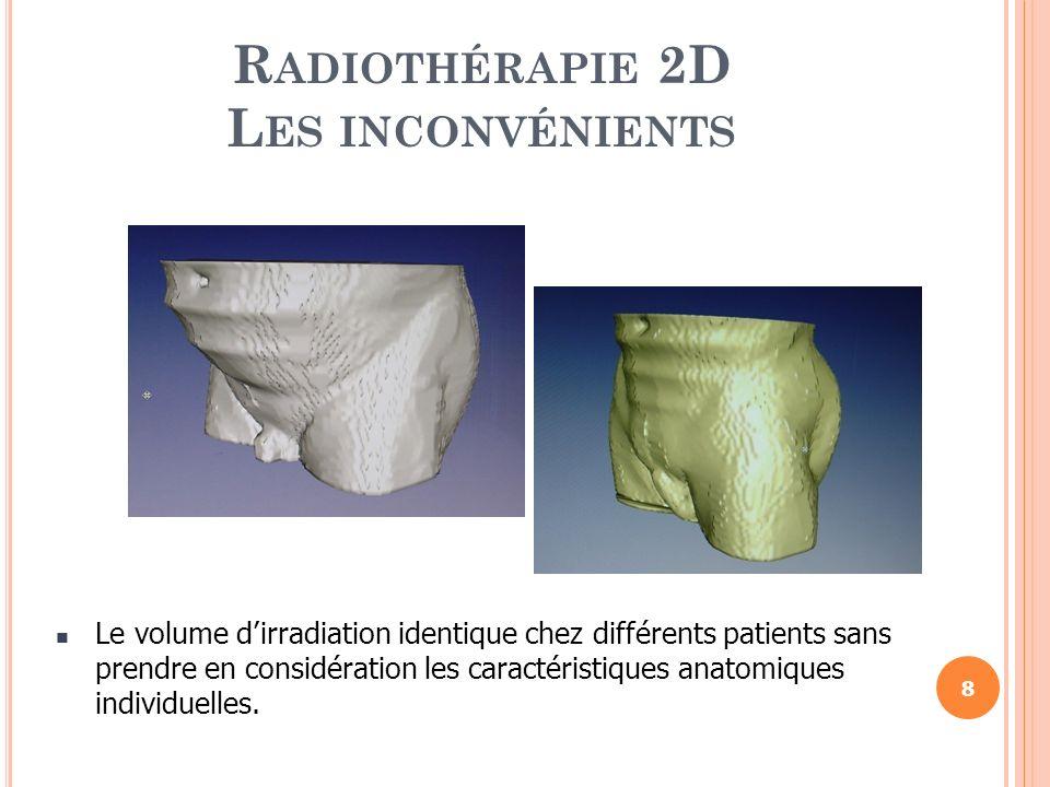 R ADIOTHÉRAPIE 2D L ES INCONVÉNIENTS Le volume dirradiation identique chez différents patients sans prendre en considération les caractéristiques anat