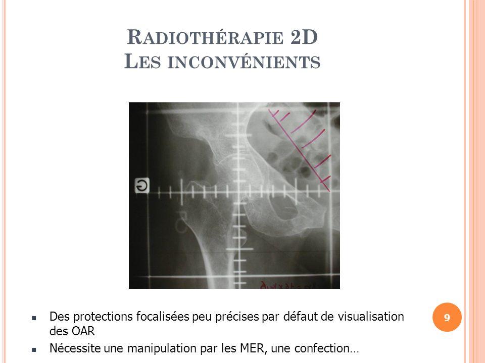 Basée sur les données dimagerie par scanner Le premier pas vers la radiothérapie de précision Améliorée après linvention du scanner spiralé qui a permis la reconstruction des organes en 3 dimensions.