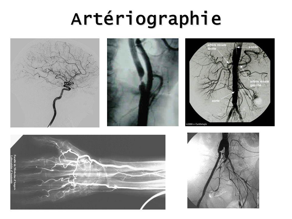 Artériographie