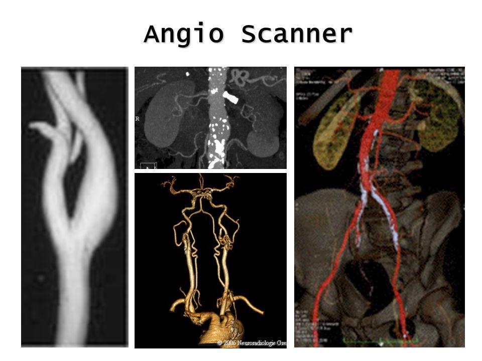 Angio Scanner