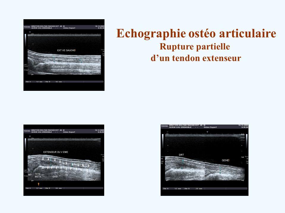 Echographie ostéo articulaire Rupture partielle dun tendon extenseur