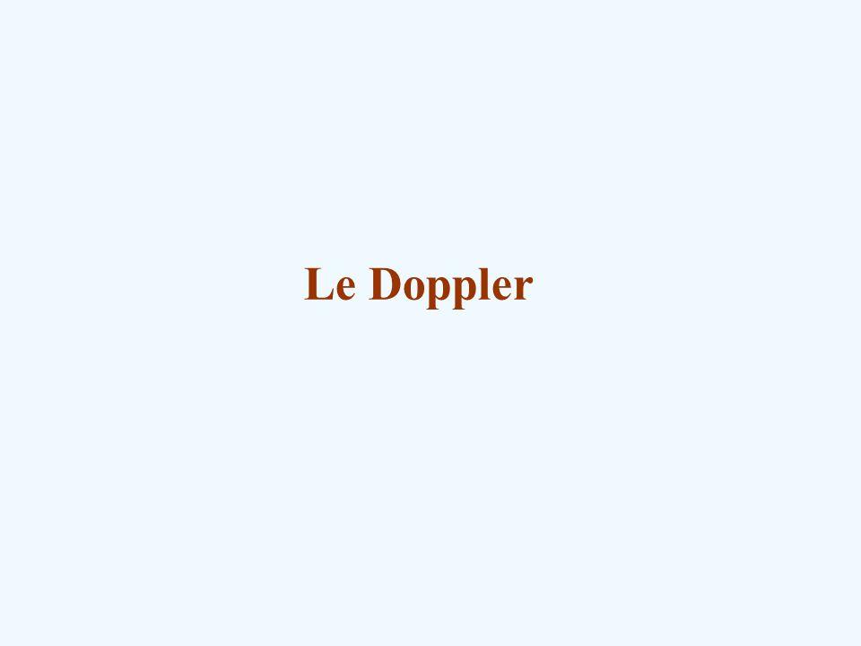 Le Doppler