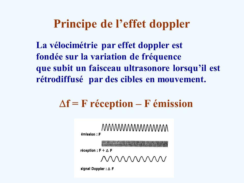 Principe de leffet doppler La vélocimétrie par effet doppler est fondée sur la variation de fréquence que subit un faisceau ultrasonore lorsquil est r