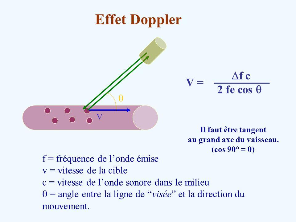 Effet Doppler V f = fréquence de londe émise v = vitesse de la cible c = vitesse de londe sonore dans le milieu = angle entre la ligne de visée et la
