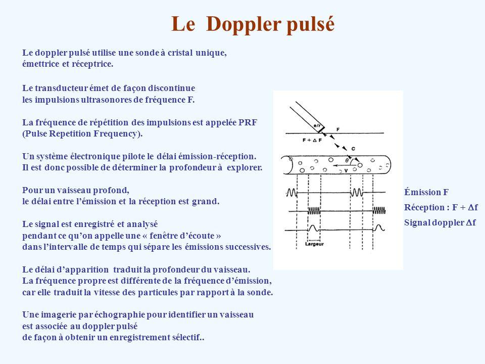 Le Doppler pulsé Le doppler pulsé utilise une sonde à cristal unique, émettrice et réceptrice. Le transducteur émet de façon discontinue les impulsion