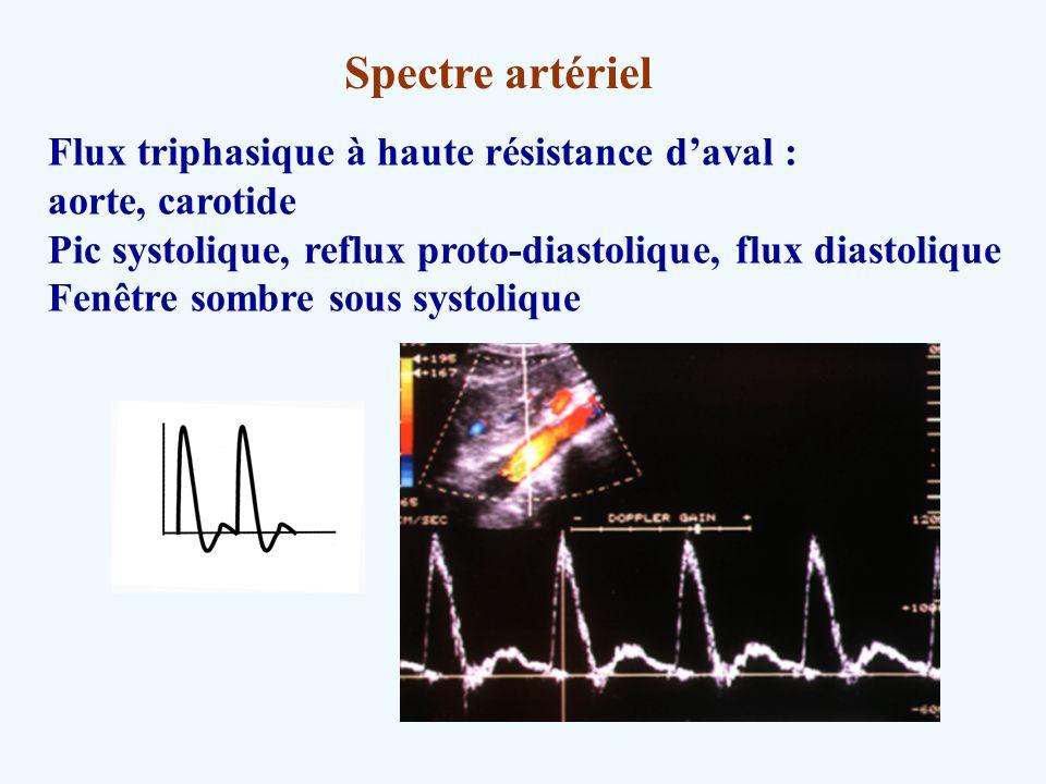 Spectre artériel Flux triphasique à haute résistance daval : aorte, carotide Pic systolique, reflux proto-diastolique, flux diastolique Fenêtre sombre