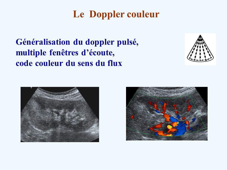Le Doppler couleur Généralisation du doppler pulsé, multiple fenêtres découte, code couleur du sens du flux