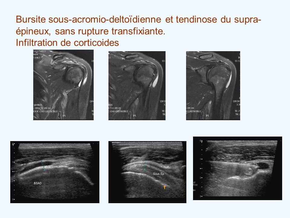 Bursite sous-acromio-deltoïdienne et tendinose du supra- épineux, sans rupture transfixiante. Infiltration de corticoides