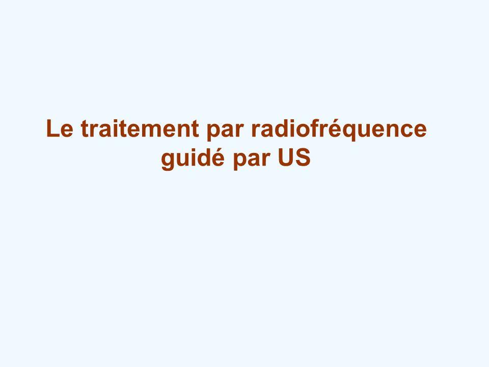 Le traitement par radiofréquence guidé par US