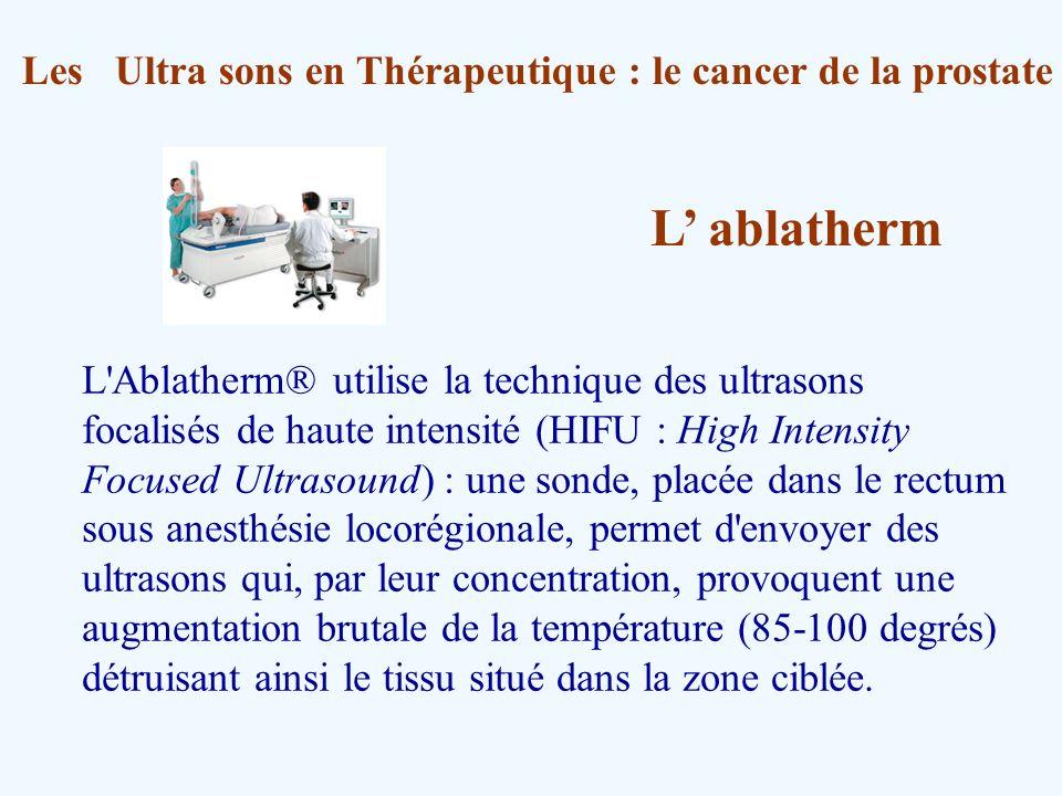 Les Ultra sons en Thérapeutique : le cancer de la prostate L'Ablatherm® utilise la technique des ultrasons focalisés de haute intensité (HIFU : High I