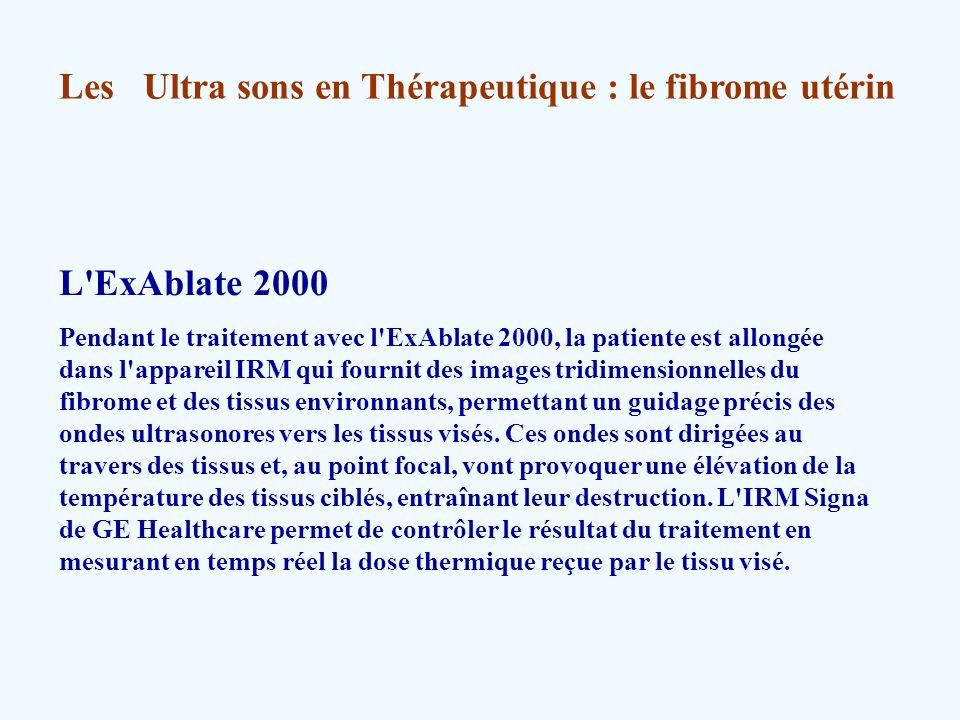 Les Ultra sons en Thérapeutique : le fibrome utérin L'ExAblate 2000 Pendant le traitement avec l'ExAblate 2000, la patiente est allongée dans l'appare