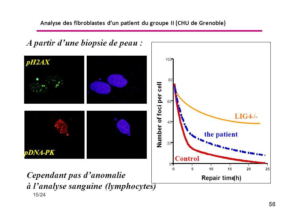 56 pH2AX pDNA-PK A partir dune biopsie de peau : Cependant pas danomalie à lanalyse sanguine (lymphocytes) Analyse des fibroblastes dun patient du groupe II (CHU de Grenoble) 15/24