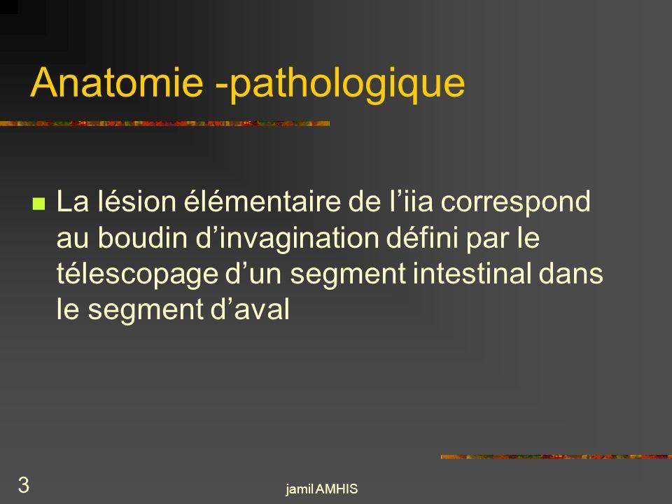 jamil AMHIS 2 Définition généralités IIA est une des causes les plus fréquentes docclusion intestinale chez le nourrisson et le jeune enfant Elle se définit par la pénétration dun segment intestinal dans le segment sous jacent Cest une urgence chirurgicale