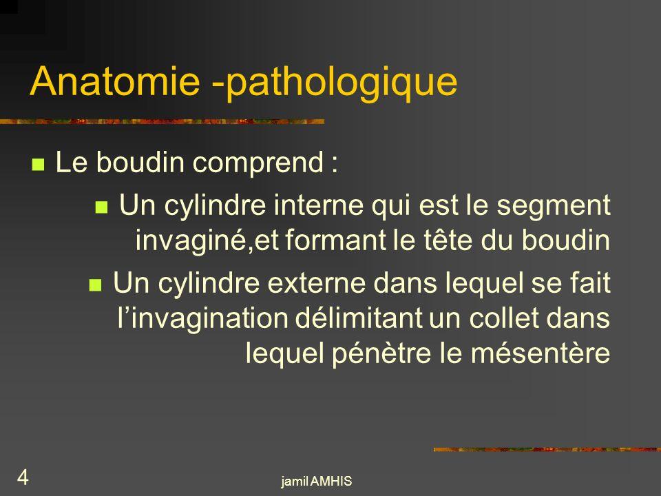 jamil AMHIS 3 Anatomie -pathologique La lésion élémentaire de liia correspond au boudin dinvagination défini par le télescopage dun segment intestinal dans le segment daval