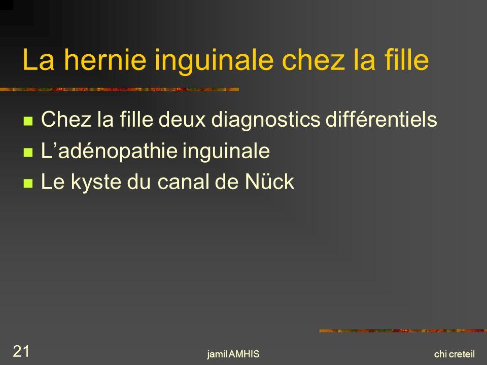 jamil AMHISchi creteil 21 La hernie inguinale chez la fille Chez la fille deux diagnostics différentiels Ladénopathie inguinale Le kyste du canal de N
