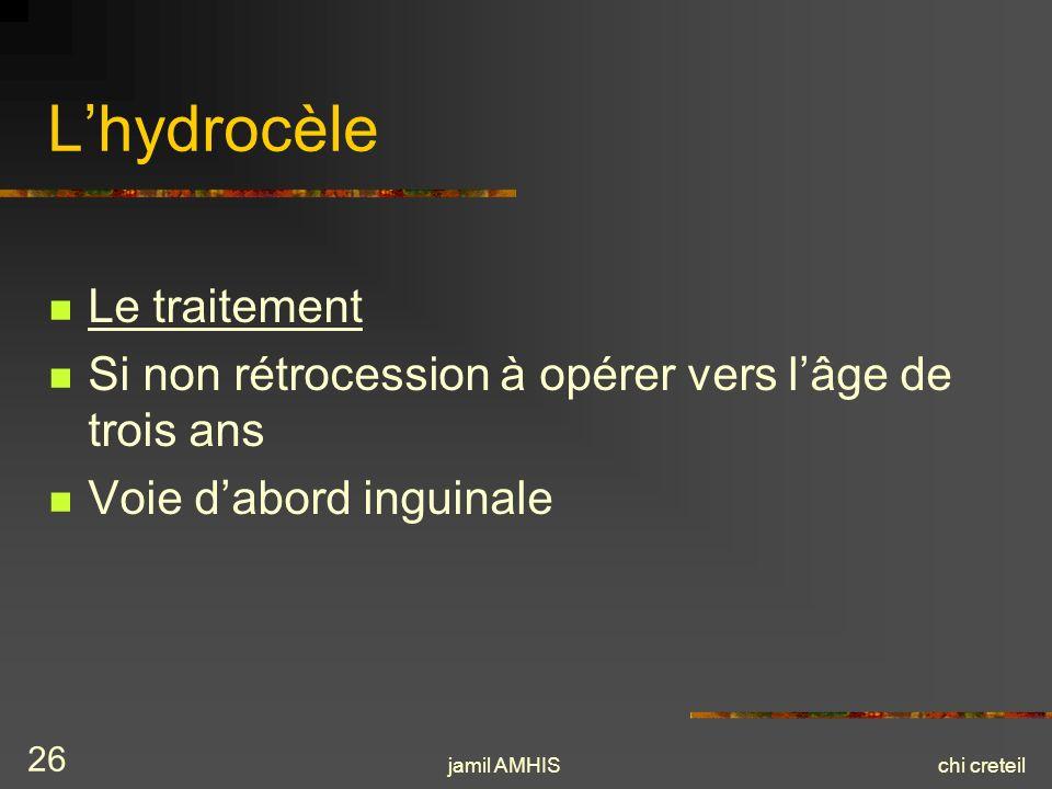 jamil AMHISchi creteil 26 Lhydrocèle Le traitement Si non rétrocession à opérer vers lâge de trois ans Voie dabord inguinale