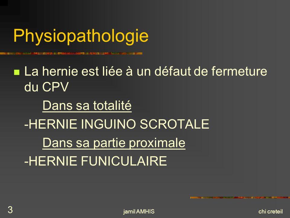 jamil AMHISchi creteil 3 Physiopathologie La hernie est liée à un défaut de fermeture du CPV Dans sa totalité -HERNIE INGUINO SCROTALE Dans sa partie