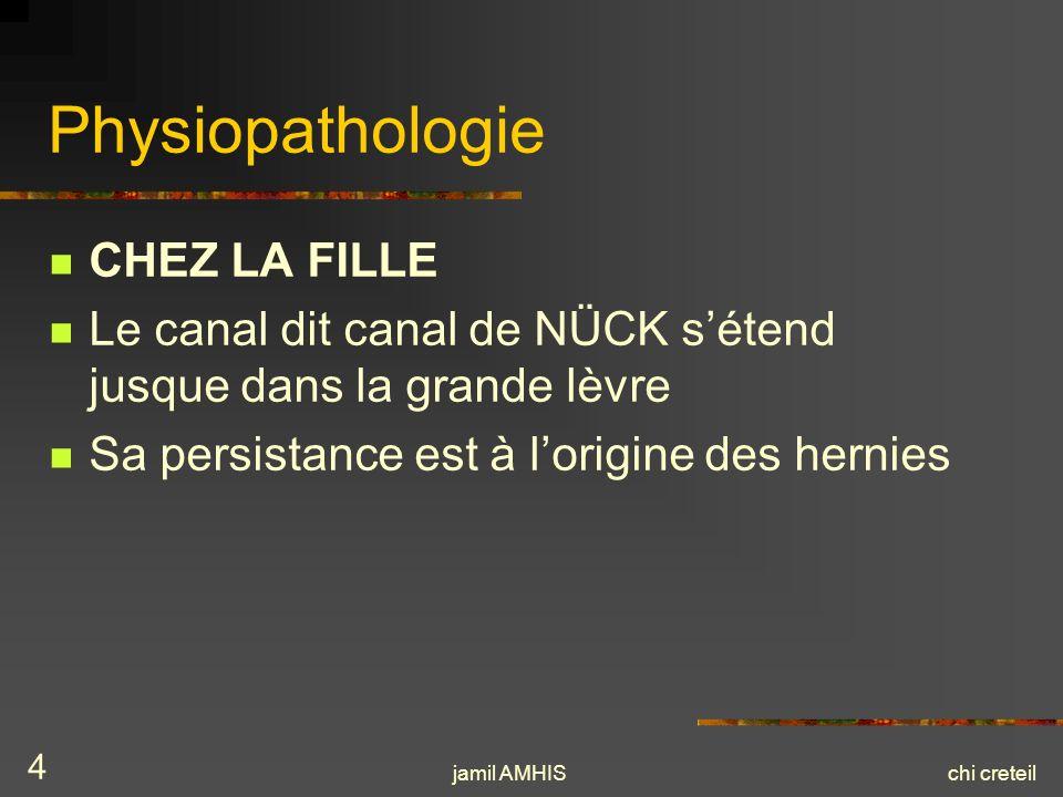 jamil AMHISchi creteil 4 Physiopathologie CHEZ LA FILLE Le canal dit canal de NÜCK sétend jusque dans la grande lèvre Sa persistance est à lorigine de