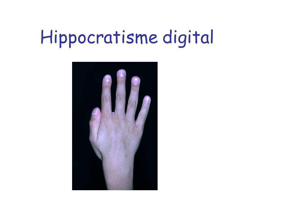 Hippocratisme digital