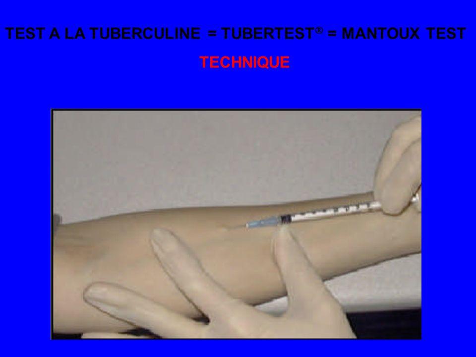 TEST A LA TUBERCULINE = TUBERTEST = MANTOUX TEST TECHNIQUE