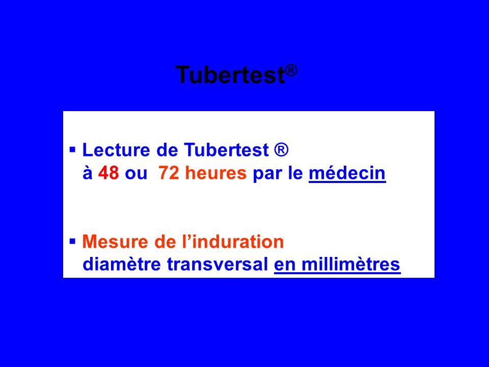 Lecture de Tubertest ® à 48 ou 72 heures par le médecin Mesure de linduration diamètre transversal en millimètres Tubertest ®