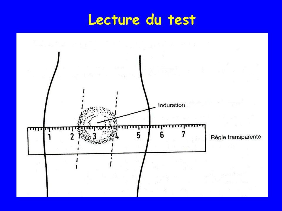 Lecture du test