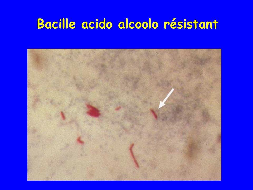 Colonies de Mycobacterium tuberculosis