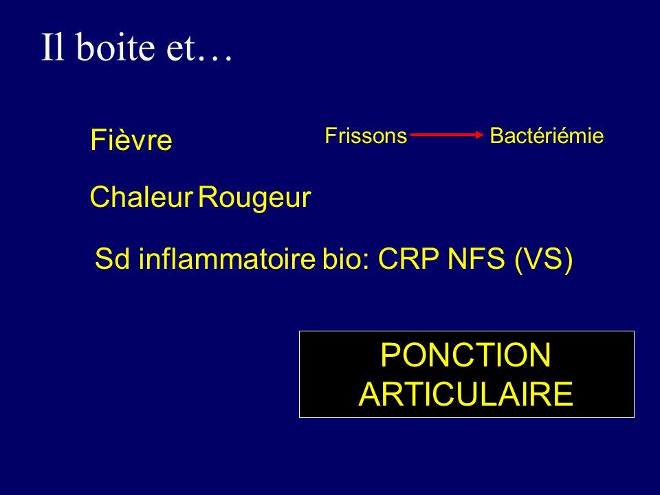 Fièvre ChaleurRougeur FrissonsBactériémie Il boite et… PONCTION ARTICULAIRE Sd inflammatoire bio: CRP NFS (VS)