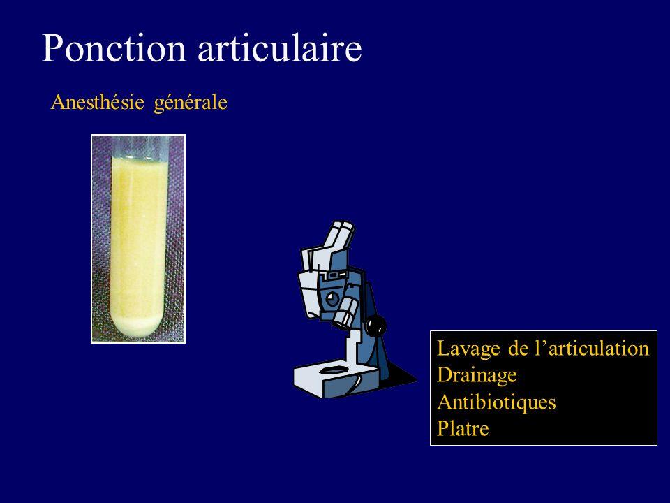 Ponction articulaire Anesthésie générale Lavage de larticulation Drainage Antibiotiques Platre