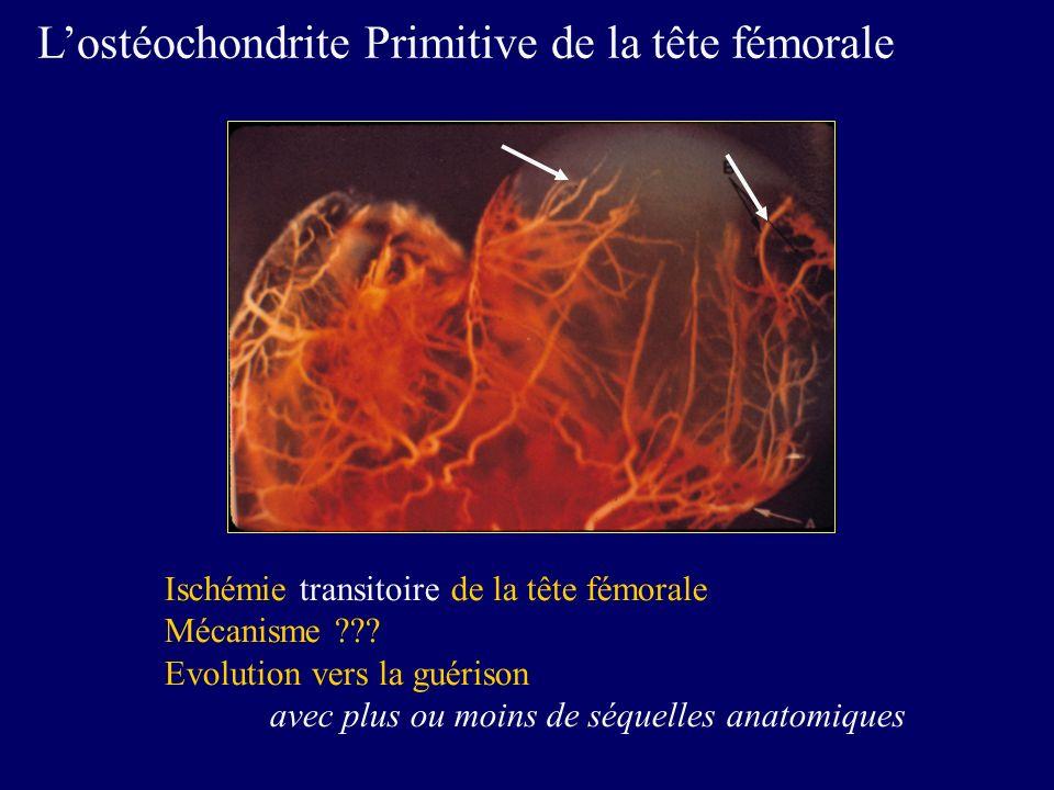 Lostéochondrite Primitive de la tête fémorale Ischémie transitoire de la tête fémorale Mécanisme ??? Evolution vers la guérison avec plus ou moins de