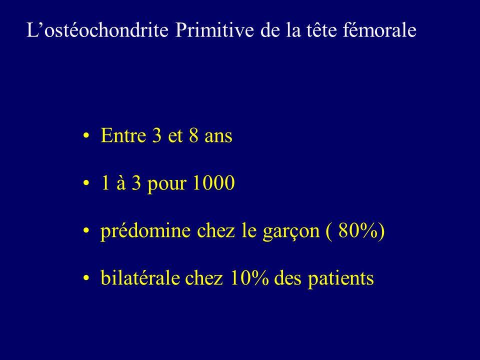 Entre 3 et 8 ans 1 à 3 pour 1000 prédomine chez le garçon ( 80%) bilatérale chez 10% des patients Lostéochondrite Primitive de la tête fémorale