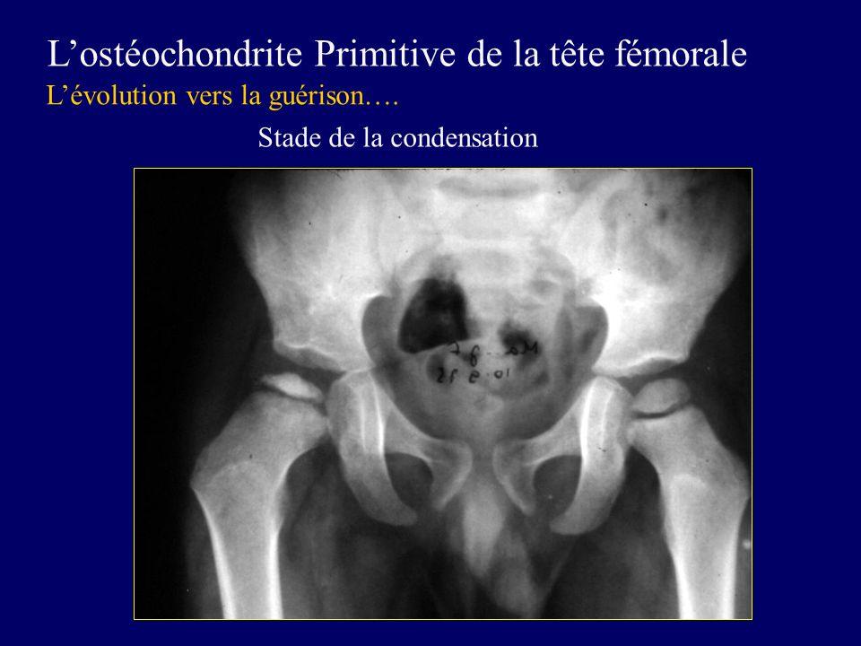 Lostéochondrite Primitive de la tête fémorale Lévolution vers la guérison…. Stade de la condensation