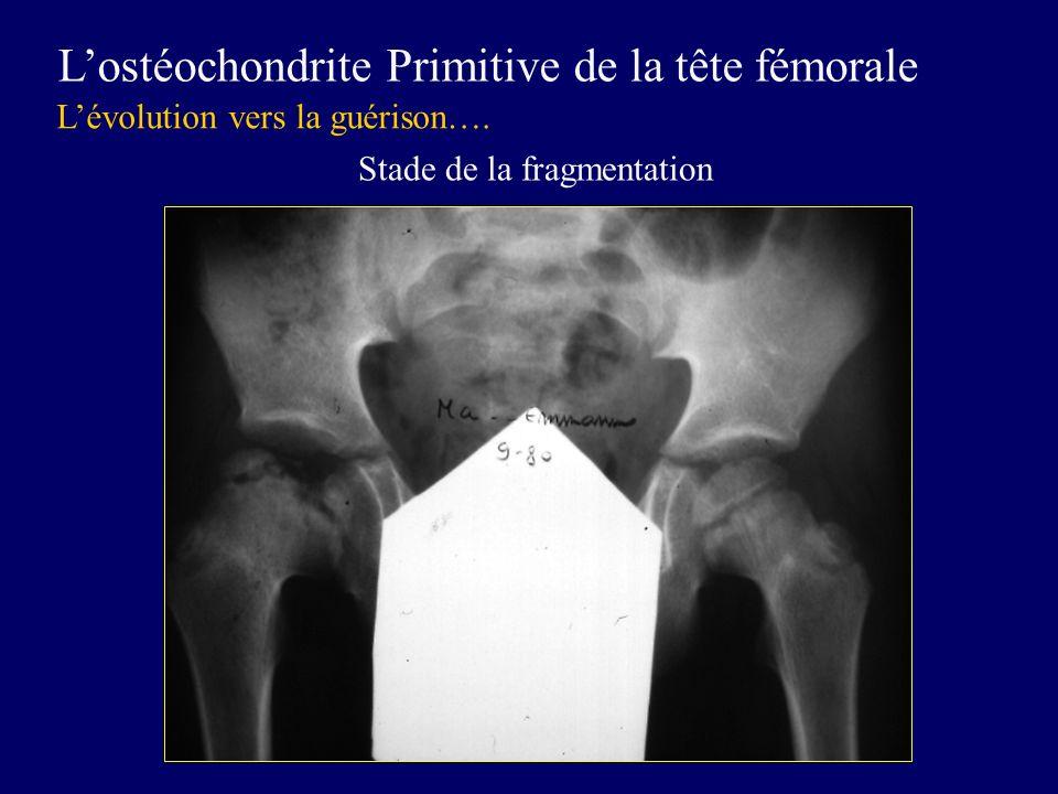 Lostéochondrite Primitive de la tête fémorale Lévolution vers la guérison…. Stade de la fragmentation