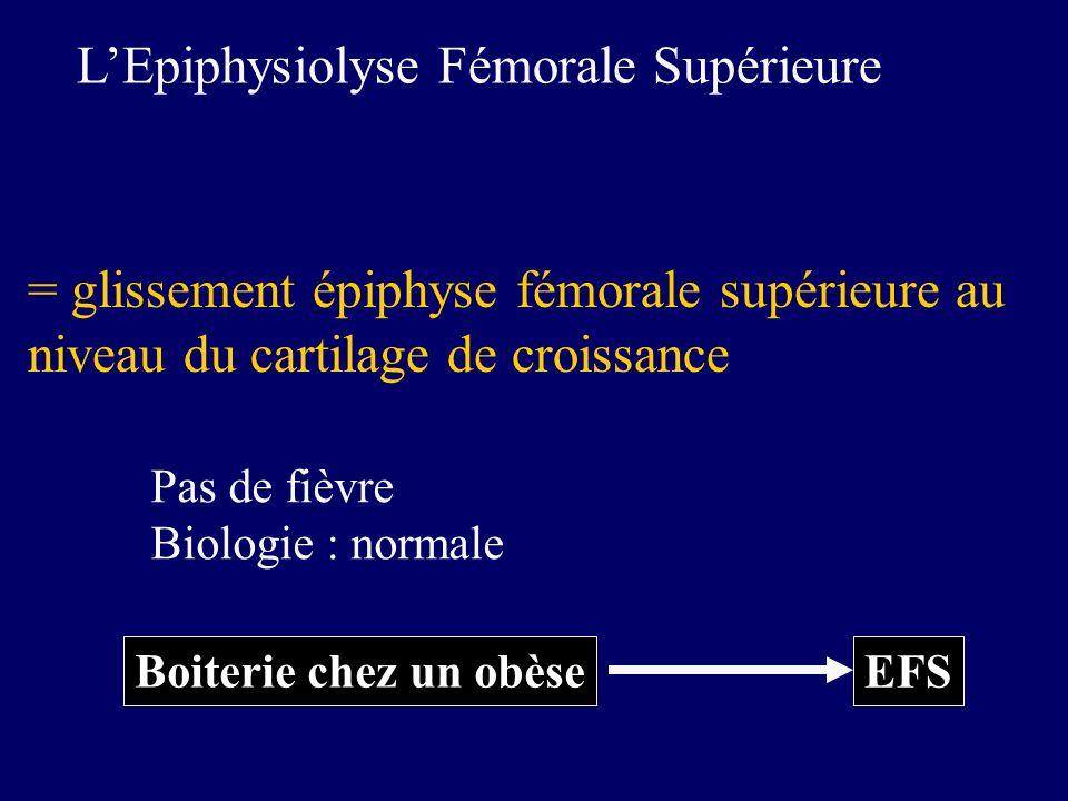 Boiterie chez un obèse EFS LEpiphysiolyse Fémorale Supérieure = glissement épiphyse fémorale supérieure au niveau du cartilage de croissance Pas de fi