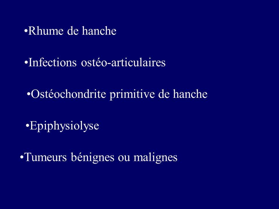Rhume de hanche Ostéochondrite primitive de hanche Epiphysiolyse Infections ostéo-articulaires Tumeurs bénignes ou malignes